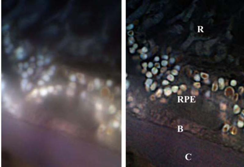 Localisation Microscopy